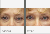 Eyelid Surgery Before and After Photos